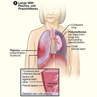 Image Result For Mesothelioma Causes Medicinenet Treatment C B Table Of Contents