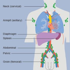 Where Are My Lymph Nodes Diagram Msd Street Fire Wiring Swollen Pain In Neck Groin Ear Armpit Causes Medicinenet