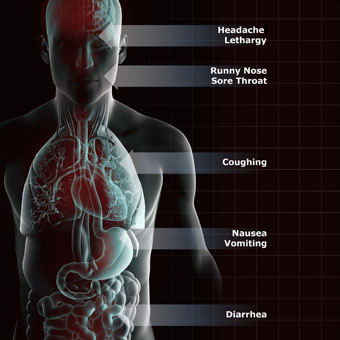 Upper Respiratory Tract Infection Symptoms, Treatment & Causes