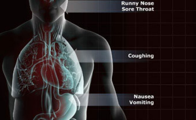 Upper Respiratory Tract Infection Symptoms Treatment Causes