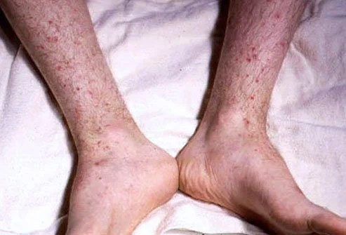 Meningococcemia: Symptoms, Rash, Causes, Treatment, Vaccine ...