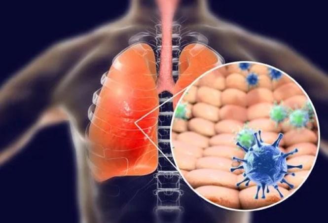 Image result for coronavirus tung hoành khắp thế giới