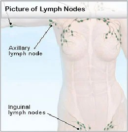 where are my lymph nodes diagram four way dimmer switch wiring swollen pain in neck groin ear armpit causes symptoms