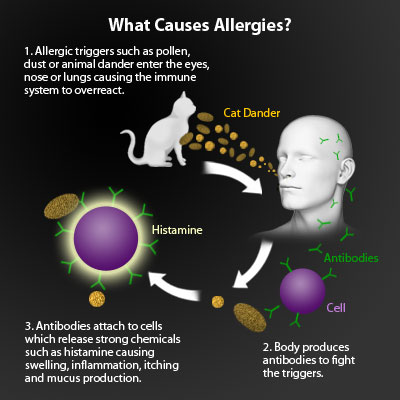 (Allergies) Symptoms, Causes, Treatment - What causes allergies ...