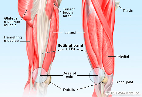 IT Band Syndrome: Treatment. Exercises. Symptoms. Recovery Time