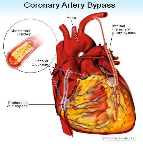 https://i0.wp.com/images.medicinenet.com/images/illustrations/coronary_artery_bypass.jpg