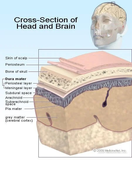 Picture of the brain and potential brain injury areas.