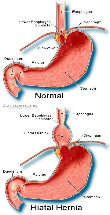 Picture of Hiatal Hernia