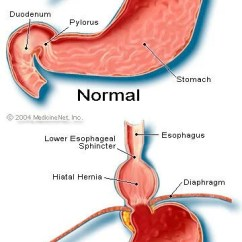 Diagram Of Throat And Esophagus Wiring Plc Omron Cpm1a Heart Attack Or Hiatal Hernia? Differences In Symptoms Signs