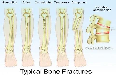diagram of tibia stress fracture porsche cayenne radio wiring types bone fractures healing tailbone collarbone others illustration