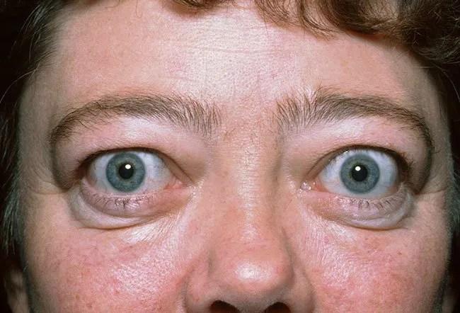 Does Herpes Cause Grave's Disease/Hyperthyroidism? 2