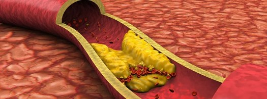 Statin's Health Benefits Far Outweigh Any Potential Harms: Study 2