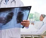 Take the Pneumonia Quiz