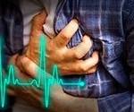 Quiz: Sudden Cardiac Arrest!