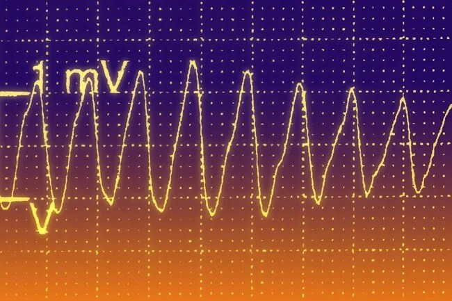 Your heart has an electrical system that keeps it beating regularly.
