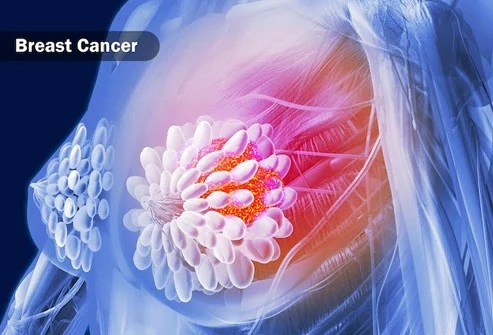 CBD kills breast cancer cells in mice, but human studies are needed to prove similar benefits for people.