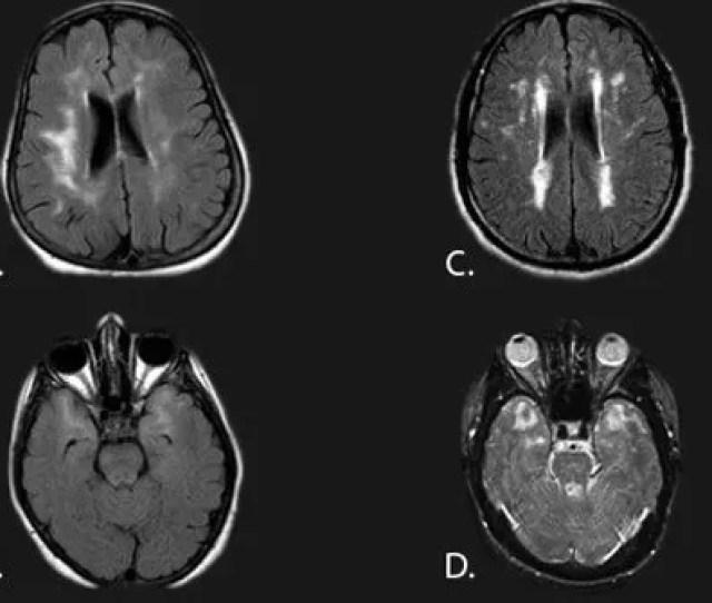 Picture Of Vascular Multi Infarct Dementia