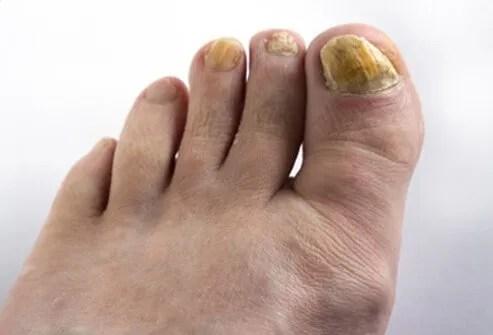Plantar Fasciitis,Pes Planus,Mallet Toe,High Arched Feet,Heel Spur,Heel Pain,Hammer Toe,Hallux Valgus,Foot Pain,Foot Hard Skin,Foot Conditions,Foot Callous,Flat Feet,Fallen Arches,Diabetic Foot,Contracted Toe,Claw Toe,Bunions Hard Skin,Bunions Callous,Bunion Pain,Ball Of Foot Pain,Back Pain
