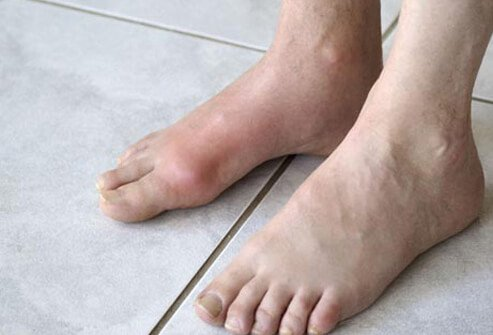 Burning or Swollen Feet What Foot Pain Says About Your Health