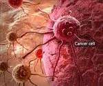 Understanding Cancer: Metastasis, Stages of Cancer, Pictures