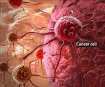 Understanding Cancer: Metastasis, Stages of Cancer, Pictures