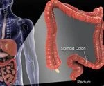 Colorectal Cancer:Understanding Cancer of the Colon