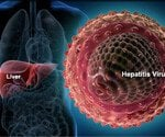 Hepatitis:A Visual Guide to Hepatitis