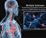 Multiple Sclerosis (MS) Symptoms, Treatment