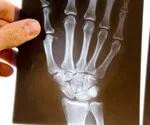 Symptoms of Rheumatoid Arthritis