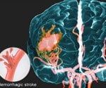 Stroke: Causes, Symptoms, and Recovery