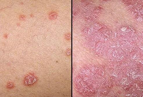 Photo of psoriasis symptoms.