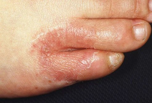 It's a mold-like fungus that grows in warm, moist areas between your toes and on the bottom of your feet.