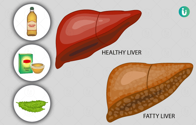 Liver Cirrhosis Meaning In Marathi