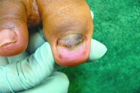 Fingernail Infection Pictures Nails Journal Acrylic Nail Fungus Part 1 Webdicine