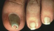 pincer nails - health