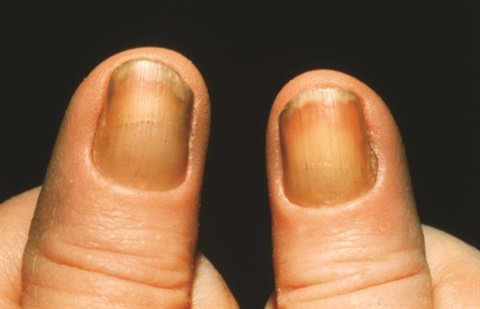 Note The Yellow Thick Nails And Lack Of A Cuticle That Are Symptoms Nail Syndrome