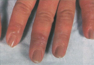 When A Client Develops Rash Around Her Fingertips Or On Neck Face She May Be Allergic To Chemical In Nail You Use