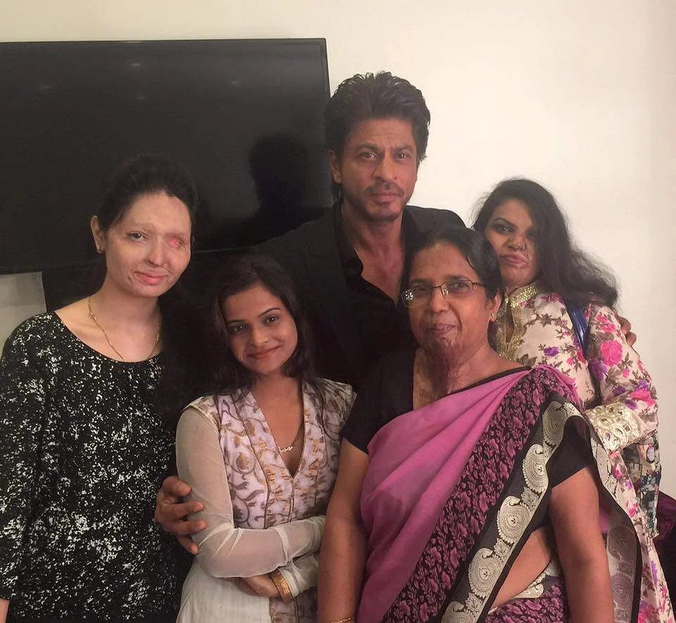 Image result for shahrukh burn victims