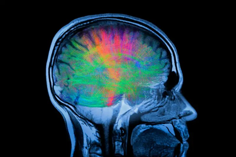A picture of a brain scan