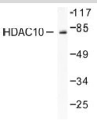 HDAC10 Antibody (NB100-91801): Novus Biologicals