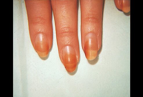 Hair Scalp And Nail Conditions Types Causes And Treatments