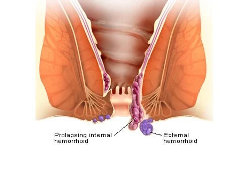External hemorrhoids are located underneath the skin that surrounds the anus.