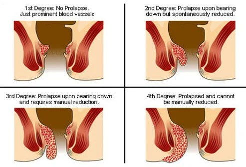 Many physicians use a grading system to categorize hemorrhoids along four stages.