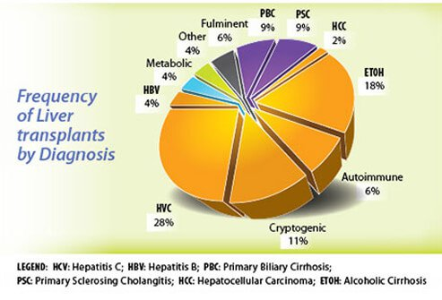 From this pie chart you can see that hepatitis c (hep c) is the most common cause of liver transplants.
