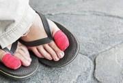 foot problems slideshow