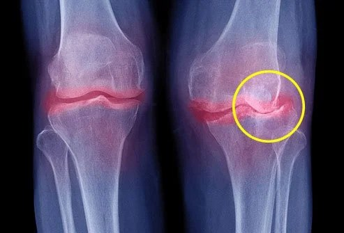 Osteoarthritis is the most common joint problem in America.