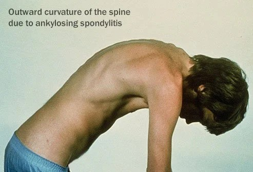Gout and anklylosing spondylitis are forms of arthritis that can harm your body.