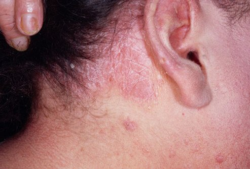 types of psoriasis medical pictures and treatments