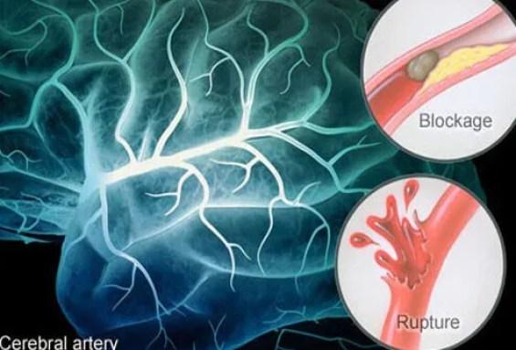 Illustration of stroke causes.