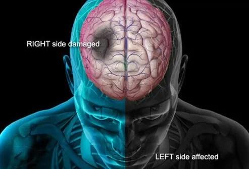 Illustration of stroke and brain.